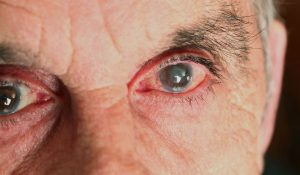 Glaucoma: Preventing RGC Degeneration