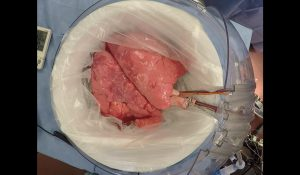 Advanced EVLP Could Extend the Lung Transplant Window