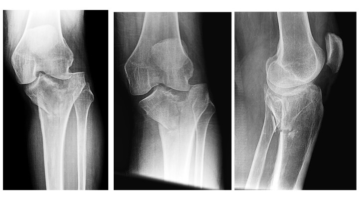 Insights into Complex Tibial Plateau Fractures