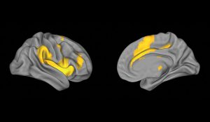 Rapid Brain Aging During Psychosis Demands Early Intervention