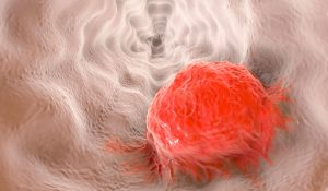 Esophageal Cancer: Adding Immunotherapy to Standard Treatment