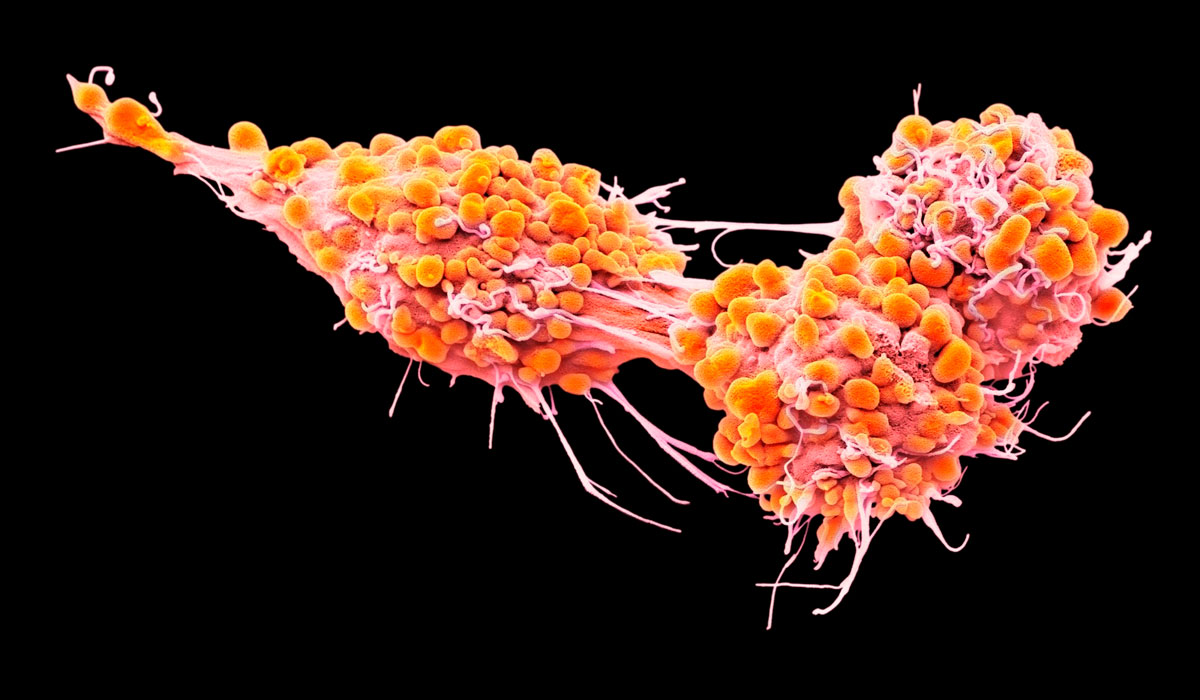 New Trial for Platinum-resistant Ovarian Cancer