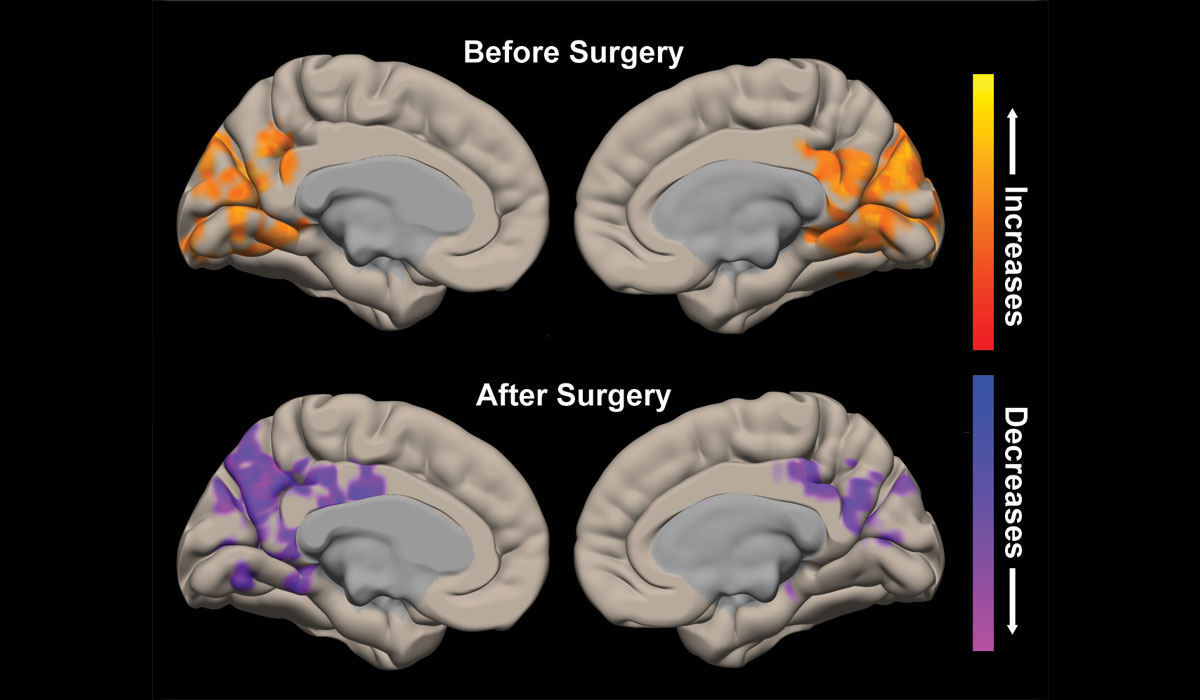 Temporal Lobe Resection Improves Brain Connectivity