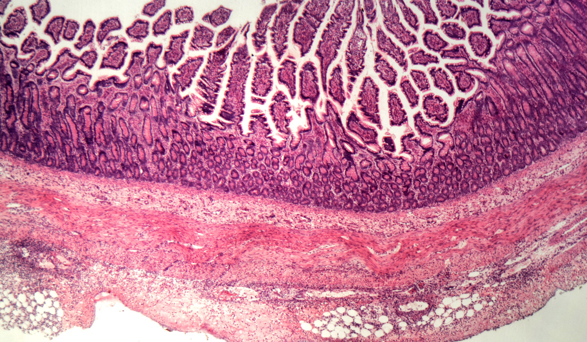 Managing Opportunistic Infections in IBD