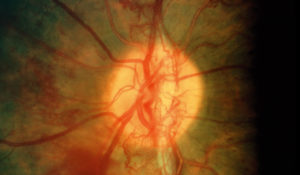 Imaging Hypoxia-induced Retinal Neovascularization