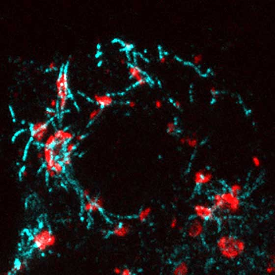 Glucose Triggers More Microtubules and Insulin Release