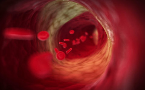 Microbial Small RNA's Role in Atherosclerosis