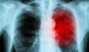 Experts Define Immunotherapy-associated Myocarditis