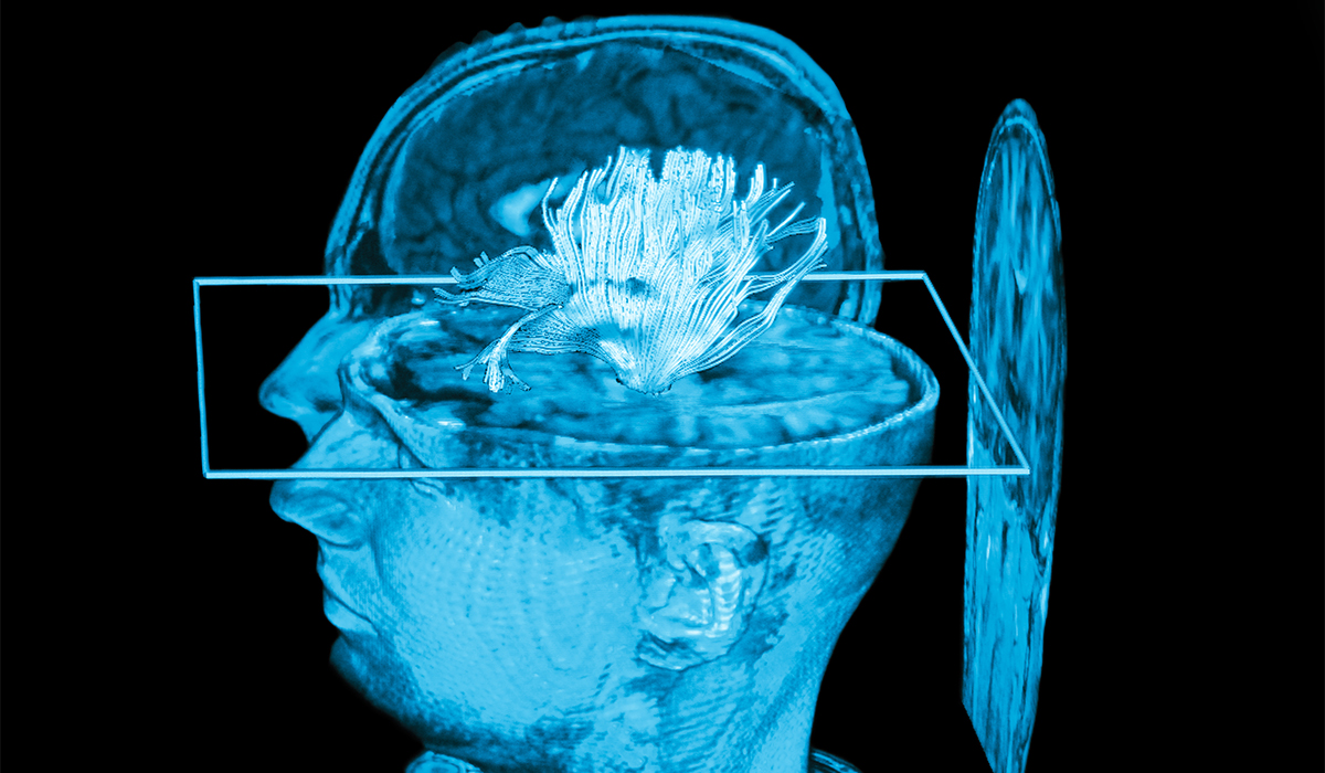 Can Neuromodulation Replace Opioids for Chronic Pain?