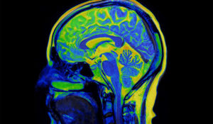 Research Advances in Functional Brain Networks