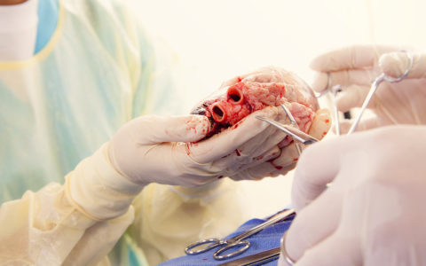 Sizing Heart Transplant Donors for ACHD