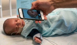 Smartphone Device Aims to Globalize Jaundice Screening