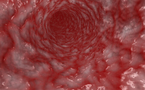 2-HOBA Could Prevent Atherosclerosis Where Statins Fail