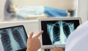 Improving Care Coordination for Advanced Lung Disease